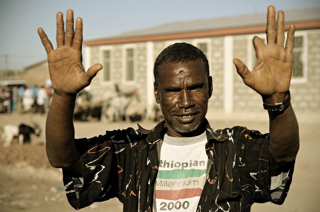 Homme avec neuf doigts, Ethiopie